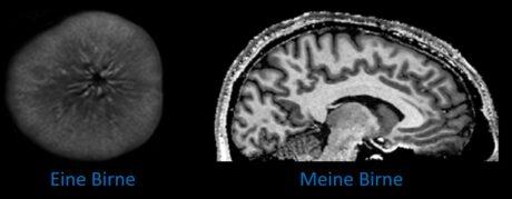 """Magnetresonanztomografie-Aufnahme: links eine Birne, rechts ein Gehirn """"meine Birne"""""""