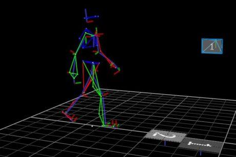 Bewegungsanalyse im Ganglabor. Die Körperteile sind in verschiedenfarbigen Strichen dargestellt.