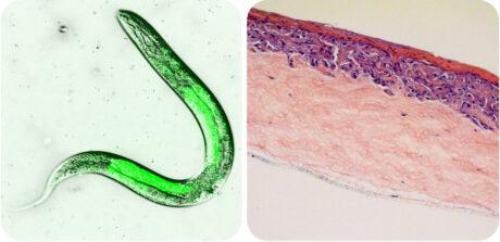 Zwei Mikroskopbilder: links ein Wurm in grün, rechts ein anatomischer Hautschnitt